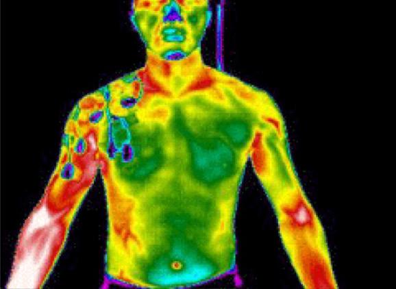 Aufnahme mit der Wärmebildkamera in einem herkömmlichen Shirt